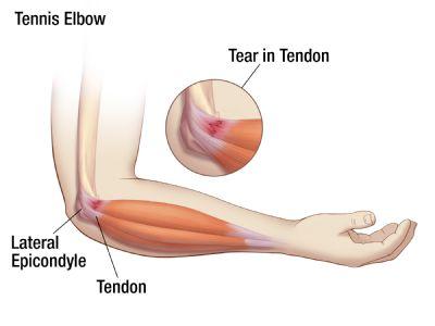 tennis elbow exercises pdf kaiser